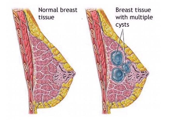 بیماری فیبروکیستیک پستان
